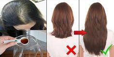Die Spitze der Heilpraktiker, um Haarausfall zu stoppen  #der #Die #haarausfall #heilpraktiker #spitze #stoppen #um #zu #frisuren #damenfrisuren #haare #beauty #women
