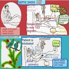 Dear Nurses - SEPTIC SHOCK - A CASE STUDY