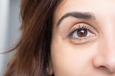 What These 11 Facial Skin Problems Are Trying To Tell You About Your Health Puffy Eye Treatment, Dark Circles Treatment, Sport Treiben, Dark Circles Under Eyes, Les Rides, Puffy Eyes, Young Models, Skin Problems