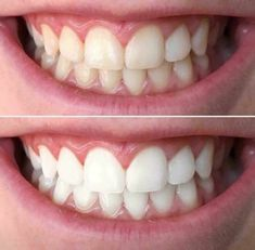 A brighter, whiter smile is just a brushing away! No trays or strips, no sensitivity! Dentist recommended solution to an affordable way to a plaque free, white smile! Nuskin Toothpaste, Ap 24 Whitening Toothpaste, Nu Skin, Dental Assistant Jobs, Dental Cosmetics, Medical Dental, Cosmetic Dentistry, White Teeth, Beauty Routines