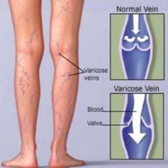 Vein Diagnosis  Treatment Clinic – The Vein Care Center offers advanced treatment to the patients with the very best results. Also you can find our services in Oak Park, Wilmette. http://theveincarecenter.com/locations/