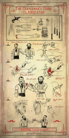 WoodNet Forums: The Gentleman's Guide To Amputation