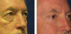 Get A No Surgery Facelift By Via Face Gymnastics Remedies