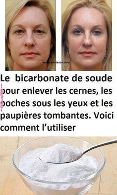 Le bicarbonate de soude pour enlever les cernes, les poches sous les yeux et les paupières tombantes. Voici comment l'utiliser | Santé | Beauty hacks,