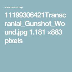 11199306421Transcranial_Gunshot_Wound.jpg 1.181 ×883 pixels