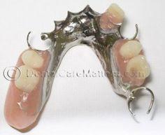 Removal Cast partial denture (Metal Framework)