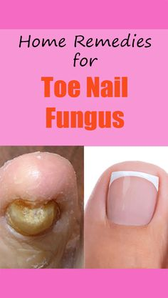 toenail fungus is treatable and actually quite easy to get rid of. In fact, certain homemade remedies have been shown to be an effective treatment. For this homemade treatment, all you need are two main ingredients: white vinegar and baking soda. Toe Fungus Remedies, Toenail Fungus Remedies, Toenail Fungus Treatment, Fungus Toenails, Vicks For Toenail Fungus, Black Toenail Fungus, Toenail Pain, Treating Toenail Fungus, Health And Wellness