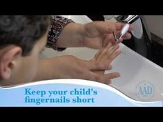 Video: Tips to help your child with eczema feel better...
