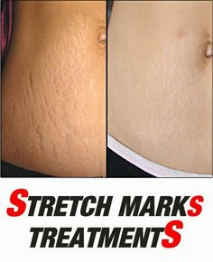 Natural Remedies to Remove Stretch Marks
