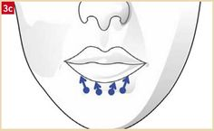 Aesthetic Dermatology, Les Rides, Aesthetics, Informed Consent, Dental Art, Makeup