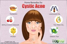 Cystic acne is one of the most severe forms of acne. This type of acne feels like soft, fluid-filled lumps under the skin's surface. These large, red breakouts can be painful and can cause significant skin damage, making the likelihood of developing scars extremely high. They tend todevelop on your face, chest, back, upper arms …