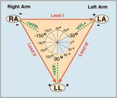 Electrocardiograma y Medicina General: Triángulo de Einthoven