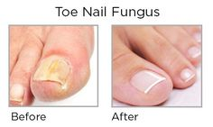 14 Best Japanese Toe Nail Fungus Code Images Fungi Toe Nails