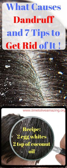 What Causes Dandruff and 7 Tips to Get Rid of It Forever – Time To Live Amazing Loading. What Causes Dandruff and 7 Tips to Get Rid of It Forever – Time To Live Amazing What Causes Dandruff, Home Remedies For Dandruff, Remedies For Tooth Ache, Natural Home Remedies, Time To Live, Getting Rid Of Dandruff, Hair Dandruff