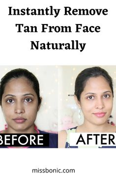 Makeup And Beauty Blog, Beauty Skin, Beauty Tips, Face Skin Care, Diy Skin Care, Remove Tan From Face, Fair Face, Tan Removal, How To Get Tan