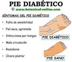 Recetas para Diabéticos y Celíacos Consejos Sanos: Pie Diabético: Consejos de prevención y cuidados ....