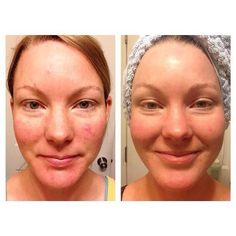 """Nathalie """"I'm not big on before/after pics bc I don't want to contribute to the lie we women often believe, that we must constantly be """"improving"""" ourselves. BUT, this is diff bc I've finally found relief for my angry irritated acne. I tried EVERYTHING: dermatologist, essential oils, supplements, diet, organic products, spot treatments, oils & creams, herbs! This is me, completely make-up free.  And it's just getting better as my scarring is fading. Yay for healthy skin!!""""  **Unblemish 6 mo"""
