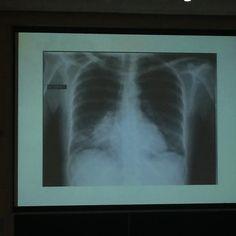 L'opacité pathologique se situe dans le lobe inférieur car le signe de la silhouette indique que l'opacité est postérieure.  /!\Rappel : Dans le thorax, le poumon est plié en 2 comme une double-feuille : les lobes supérieur et moyen constituent la page antérieure, tandis que lobe inférieur constitue la page postérieure.