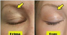 The bicarbonate mask that removes wrinkles, blemishes and cica .- La maschera al bicarbonato che elimina rughe, macchie e cicatrici 5 natural and effective remedies to lift drooping eyelids - Beauty Secrets, Beauty Hacks, Drooping Eyelids, Colon Cleansers, Hair Removal Remedies, Unwanted Hair, Wrinkle Remover, Beauty Recipe, Beauty Care