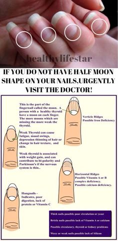 Visible Half Moons In nails means healthy thyroid.....