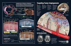 Glioblastoma Angiogenesis