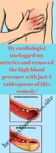 Watch This Video Captivating Clear Blocked Arteries with Natural Health Remedies Ideas. Splendid Clear Blocked Arteries with Natural Health Remedies Ideas. Holistic Remedies, Natural Health Remedies, Natural Cures, Natural Healing, Au Natural, Herbal Remedies, Health Diet, Health And Nutrition, Health And Wellness