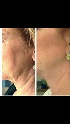 NeriumAD Before and After!!  dmcarrere.theneriumlook.com