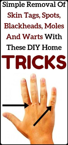 Say goodbye to skin tags, moles, blackheads and warts with these home DIY tricks. Say goodbye to skin tags, moles, blackheads and warts with these home DIY tricks. Natural Health Remedies, Natural Cures, Natural Healing, Herbal Remedies, Natural Treatments, Natural Foods, Holistic Healing, Natural Beauty, Tips And Tricks