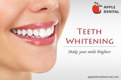 Teeth whitening treatment make your smile brighter. Tooth whitening lightens teeth and helps to remove stains and discoloration. Dental Teeth, Dental Implants, Children Dental Care, Affordable Dental, Teeth Straightening, Teeth Bleaching, Dental Problems, Best Teeth Whitening, Root Canal