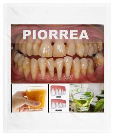 Pin on remedios naturales Pin on remedios naturales Herbal Remedies, Natural Remedies, Healthy Tips, Healthy Recipes, Health And Wellness, Health Fitness, Teeth Care, Yoga Benefits, Dental Health