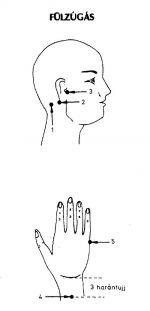 Fülzúgás - tinnitus akupresszúra kezelése Health Care, Facebook, Health