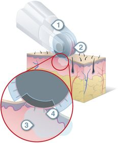 DermaFrac is a procedure that uses epidermal infusion technology to treat many skin concerns such as acne, scars, stretch marks, hyper pigmentation, dry skin, and fine lines. The precision-controlled hand piece uses vacuum suction to pull the skin into contact with hundreds of micro-needles that create pathways for infusion of targeted serums by penetrating the epidermis.