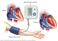 Eye-Opening Useful Ideas: Blood Pressure Pregnancy Baby hypertension pharmacology beta blockers.Hypertension Essential Oils Young Living what is blood pressure heart disease. High Blood Pressure Causes, What Is Blood Pressure, Blood Pressure Numbers, Natural Blood Pressure, Blood Pressure Medicine, Blood Pressure Symptoms, Reducing High Blood Pressure, Blood Pressure Chart, Home Remedies