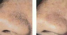 Így tüntetheted el a csúnya kis fekete mitesszereket az arcodról egy fogkefe segítségével! – Filantropikum.com