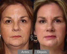 Vou te ensinar como fazer um botox caseiro para o rosto, que vai te ajudar a reduzir pequenas linhas de expressão e melhorar muito a beleza do seu rosto.
