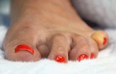 Do you suffer with hammertoe? So, what is hammertoe? Find out more.....