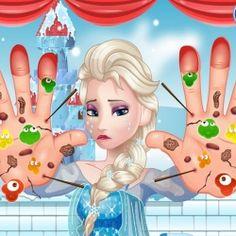 Elsa Frozen'ın ellerine acilen müdahele edilmesi gerekiyor.