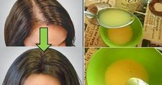 This simple remedy helps your hair growth! This simple remedy helps your hair growth! Beauty Care, Beauty Hacks, Hair Beauty, Beauty Ideas, Hair Loss Causes, Natural Hair Styles, Long Hair Styles, Hair Loss Remedies, Tips Belleza