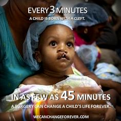 Every 3 minutes a child is born with a cleft.     Visit www.wecanchangeforever.com to learn more, take the pledge, and help us heal smiles.
