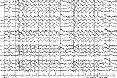 non-convulsive status epilepticus q&a page