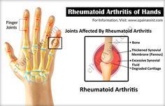 Rheumatoid Arthritis of Hands