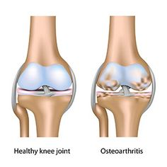 http://ihplus.com/stem-cell-therapy-knees/