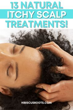 Here are the 13 best natural scalp itch remedies! Try any of these DIY treatments to relieve an itchy scalp at home! via @hibiscusroots Natural Hair Growth Tips, Extreme Hair Growth, Natural Hair Regimen, How To Grow Natural Hair, Itchy Scalp Treatment, Diy Hair Treatment, Hair Treatments, Sores On Scalp, Dry Scalp Remedy