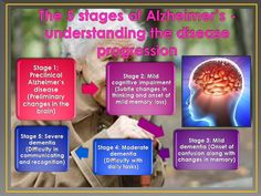 How To Understand The Different Stages Of Alzheimer's