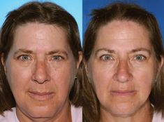 Know Face Wrinkles – Anti Aging Help Can Stop Premature Aging Smokers Face, Smoking Facts, Lip Wrinkles, Smoking Causes, Metabolic Syndrome, Sagging Skin, Skin Care Tips, Anti Aging, Colorado