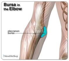 Elbow Bursitis is a common cause of elbow pain. Repeated excessive pressure and/or friction, such as leaning on a table top at work, may cause this bursa to become inflamed. This will result in moderate inflammation and pain in this area | AidMyBursa.com