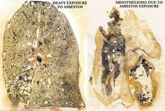 asbestosis disease cancer lung picture  | ... Cancer & Asbestos Related Disease » Occupational Lung Disease