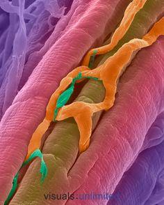 Capilares atravesando fibras musculares cardiacas
