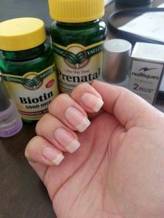 Secret to pretty nails. Biotin, prenatal vitamins, and nailtiques.