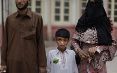 Chilling crimes: Akhtar Yar, 9, holds the hand of his brother Rukhan, 23, left, standing next to eunuch and acid attack survivor, Zafar Iqbal, 23. Akhtar and his father were attacked in 2004 by a man who the father had had an argument with earlier in the day.